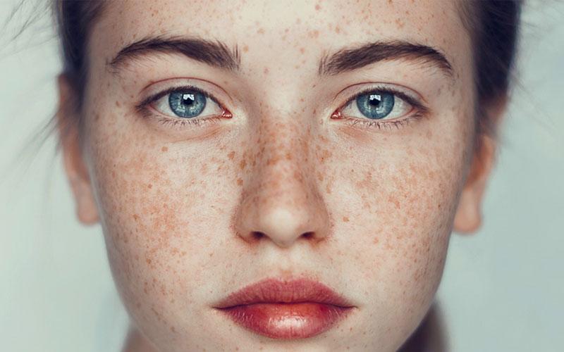 پوشاندن لکه های صورت با آرایش